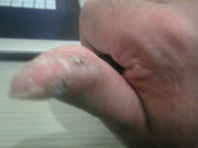 Thumb After